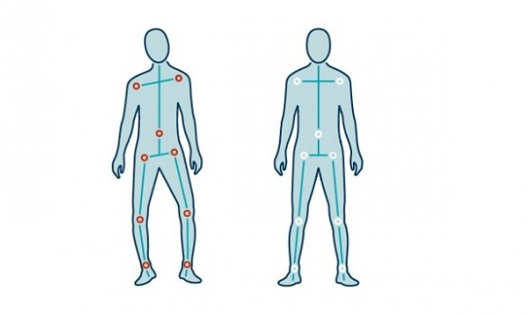 Line drawing of human body showing misaligned posture next to good alignment