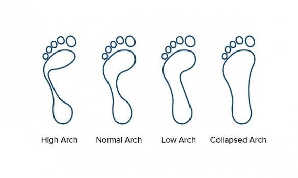 Line drawing showing the arch types of the foot