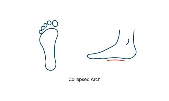 Collapsed or fallen foot arches | Flat Feet | FootBalance