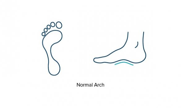 Illustration showing a normal arch of the foot