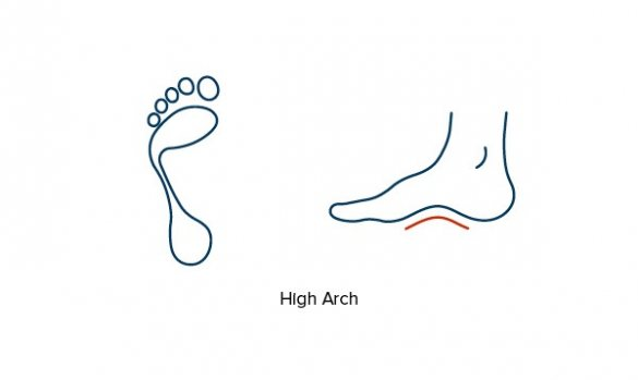 Illustration showing high foot arches & supination