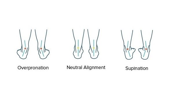 Overpronation, Neutral Alignment, Supination