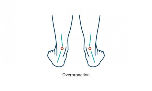 Line drawing showing over-pronation and foot misalignment