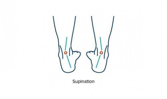 Illustration showing supination and foot misalignment