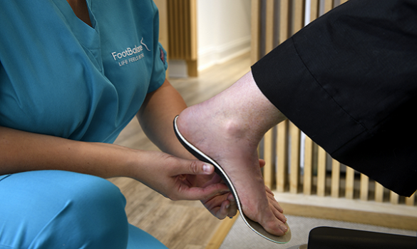 FootBalance Custom Orthotic Insoles being fitted to a foot by a Podiatrist