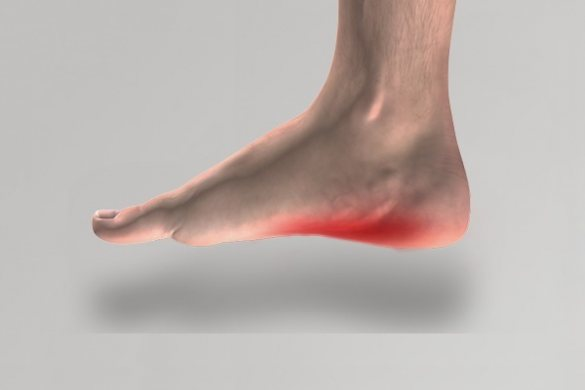 Image of bare foot with red area indicating foot pain
