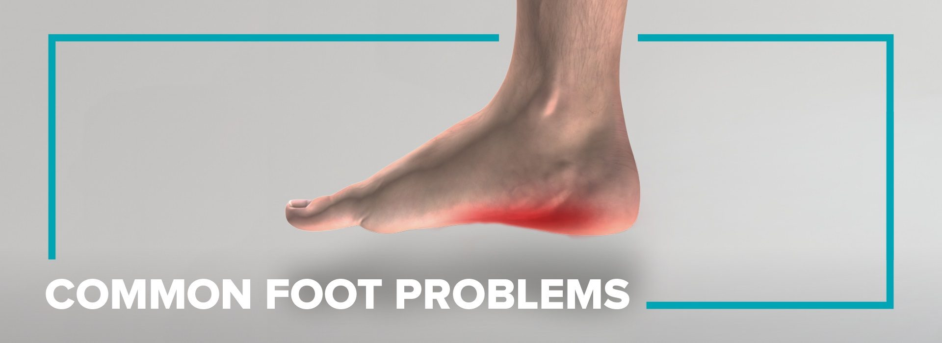 FootBalance Custom insoles help foot pain and common foot